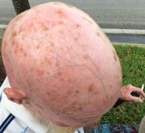 pophead1
